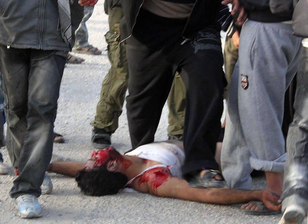 إصابات، مصابون، عنف الشرطة، ثورة 25 يناير